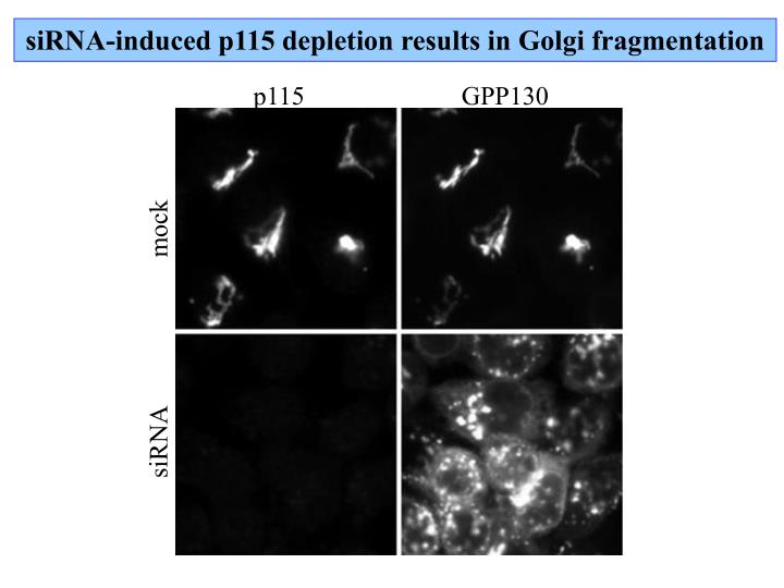 siRNA-induced p115 depletion results in Golgi fragmentation