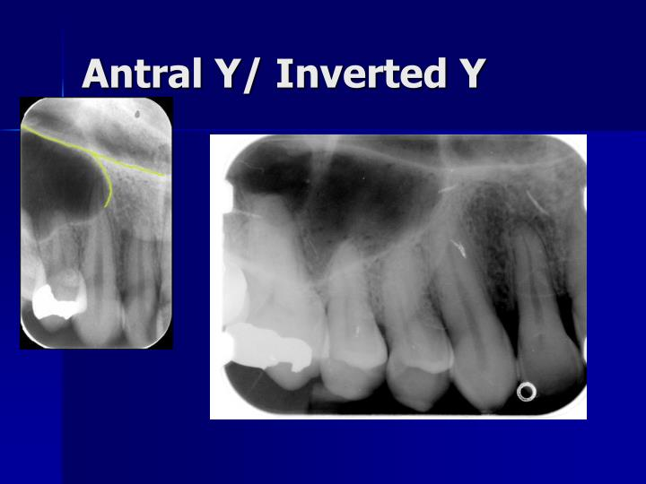 Antral Y/ Inverted Y