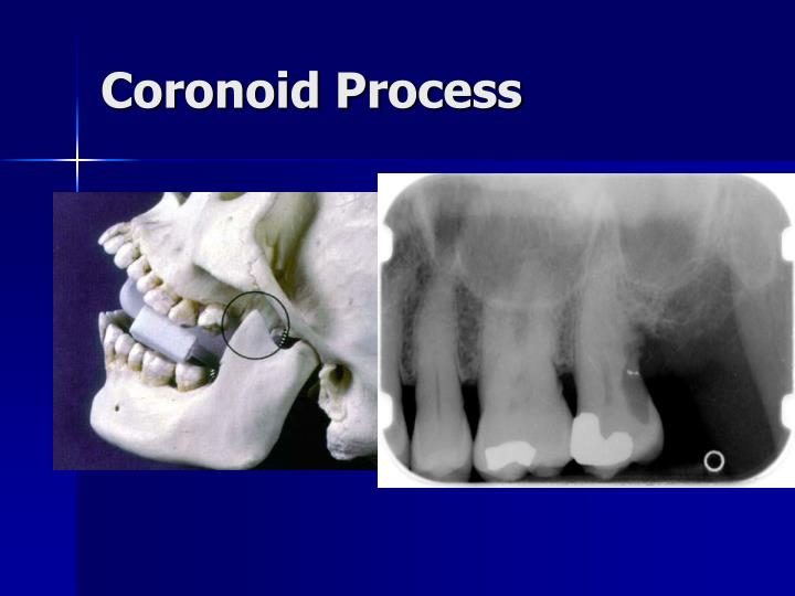 Coronoid Process