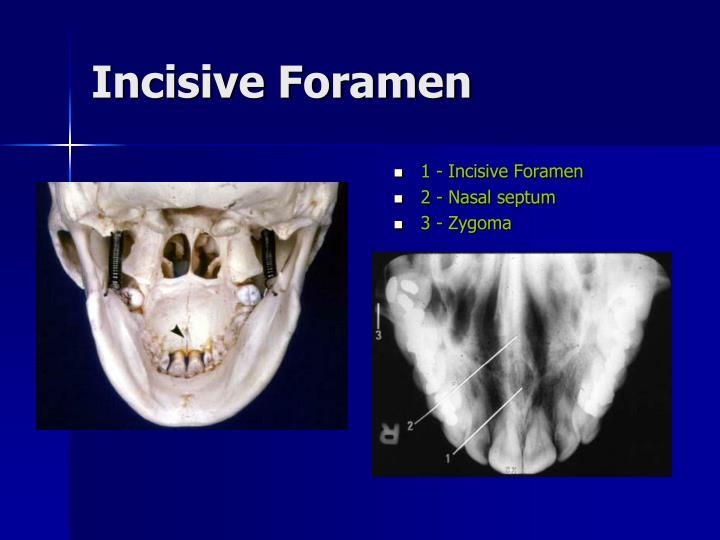 1 - Incisive Foramen