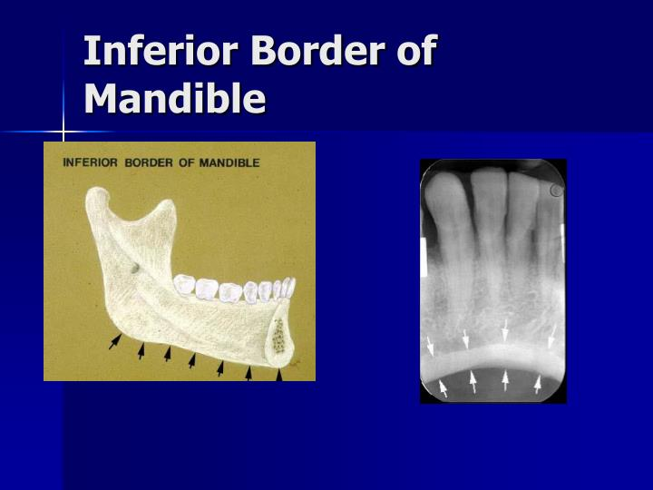 Inferior Border of Mandible