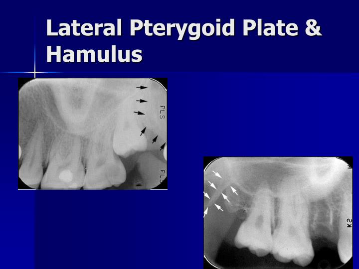 Lateral Pterygoid Plate & Hamulus