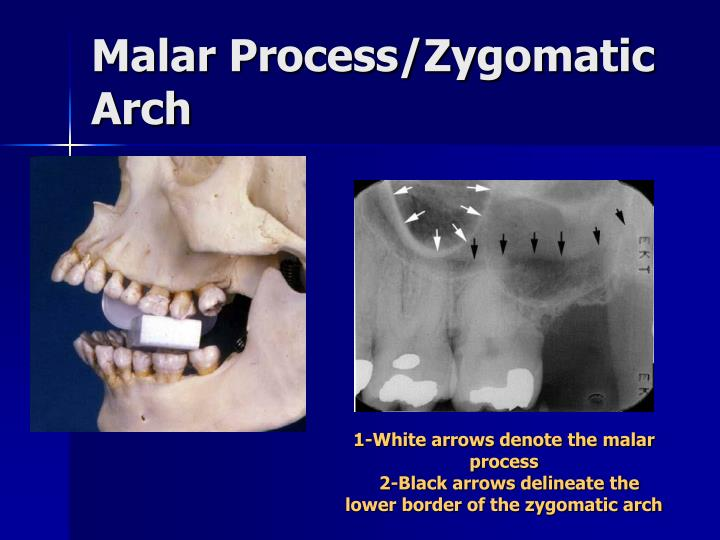 Malar Process/Zygomatic Arch