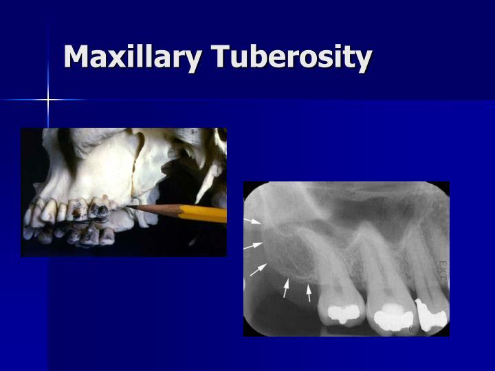 Maxillary Tuberosity