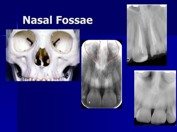 Nasal Fossae
