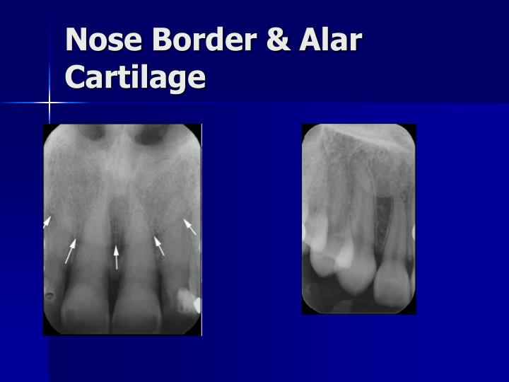 Nose Border & Alar Cartilage