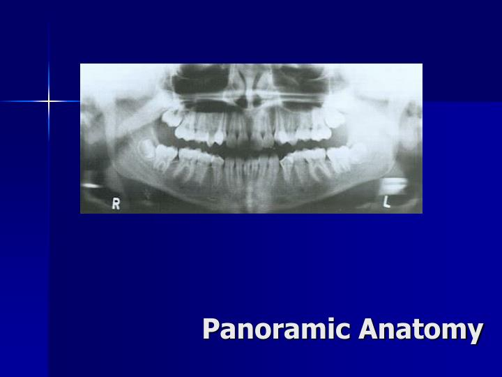 Panoramic Anatomy