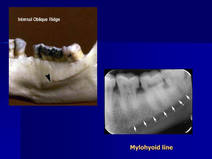 Mylohyoid line