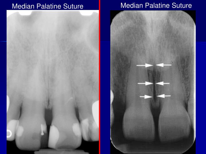 Median Palatine Suture