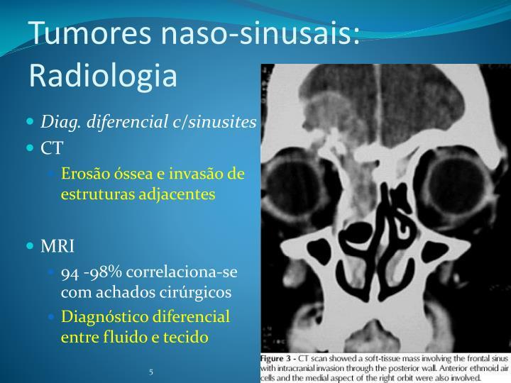 Tumores naso-sinusais: Radiologia