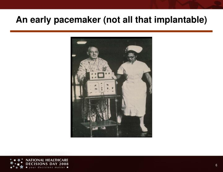 An early pacemaker (not all that implantable)