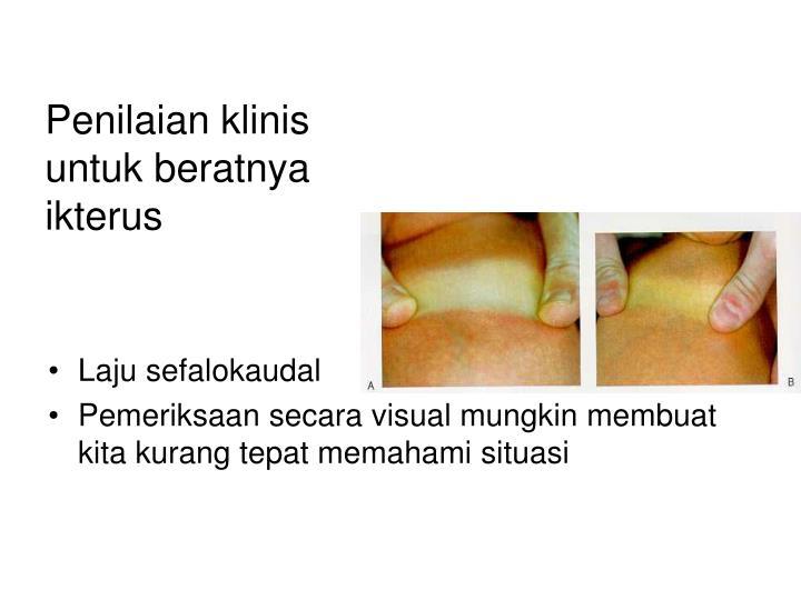 Penilaian klinis