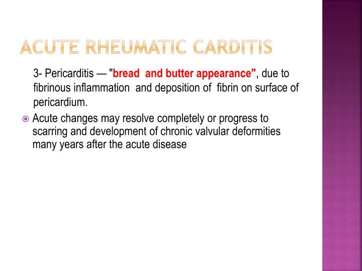 Acute rheumatic