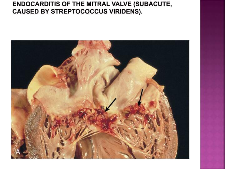 Endocarditis of the mitral valve (