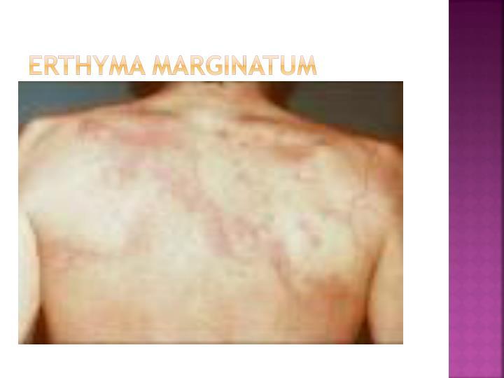 Erthyma