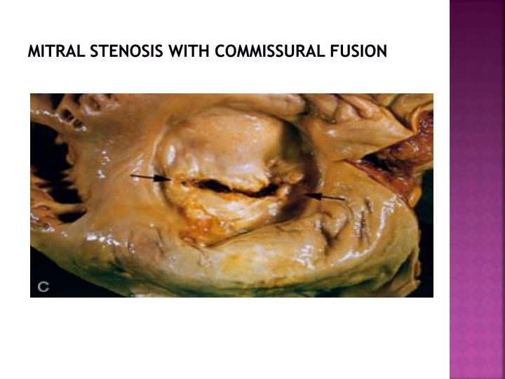 Mitral stenosis with commissural fusion