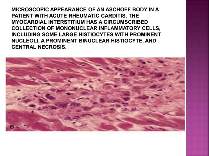 Microscopic appearance of an