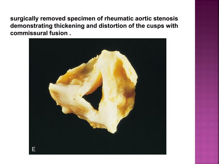 surgically removed specimen of rheumatic aortic stenosis demonstrating thickening and distortion of the cusps with commissural fusion .