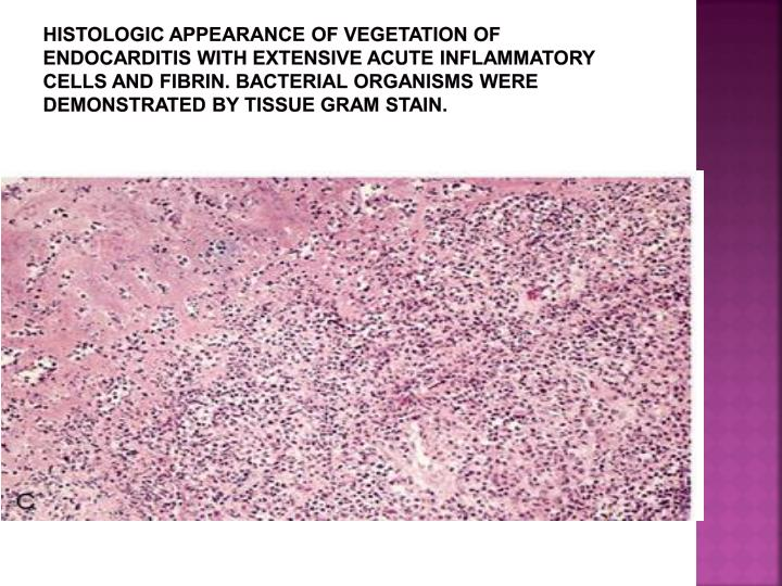 Histologic appearance of vegetation of endocarditis with extensive acute inflammatory cells and fibrin. Bacterial organisms were demonstrated by tissue Gram stain.