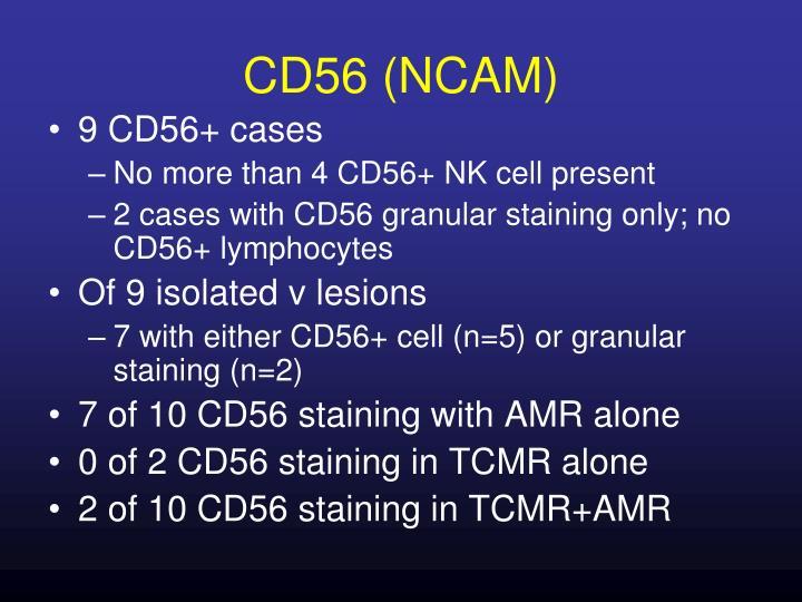 CD56 (NCAM)