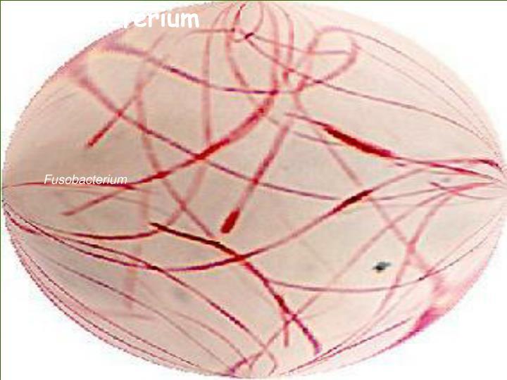 Fusobacferium