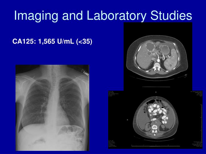 Imaging and Laboratory Studies