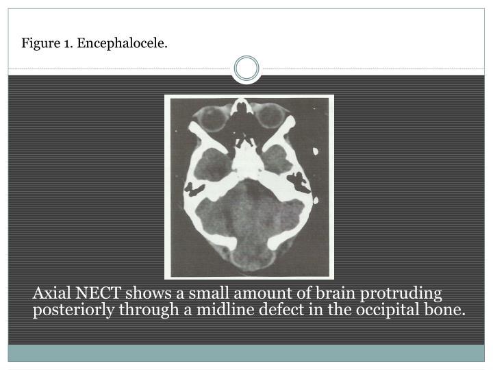 Figure 1. Encephalocele.