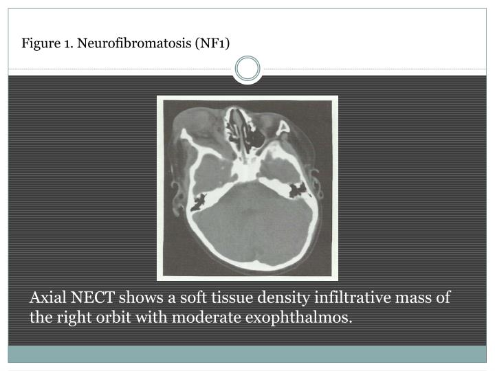 Figure 1. Neurofibromatosis (NF1)
