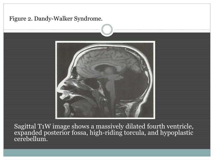 Figure 2. Dandy-Walker Syndrome.