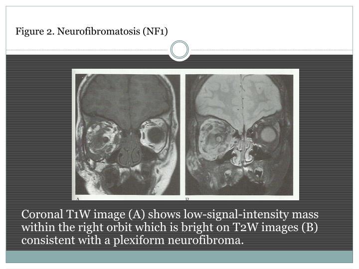 Figure 2. Neurofibromatosis (NF1)