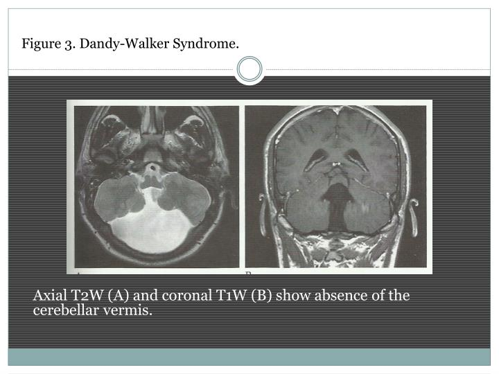 Figure 3. Dandy-Walker Syndrome.