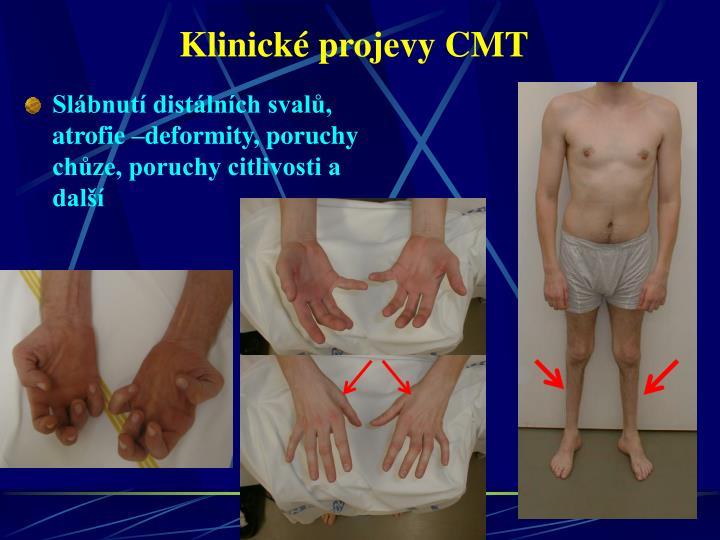 Klinické projevy CMT