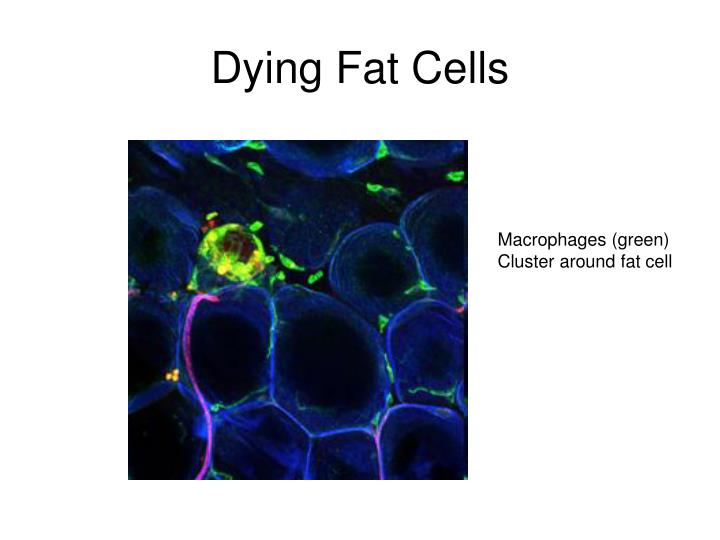 Dying Fat Cells