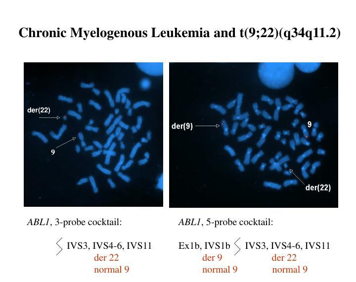 Chronic Myelogenous Leukemia and t(9;22)(q34q11.2)