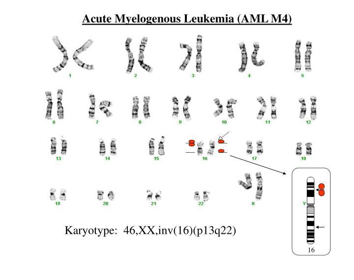 Acute Myelogenous Leukemia (AML M4)