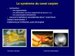 le syndrome du canal carpien1