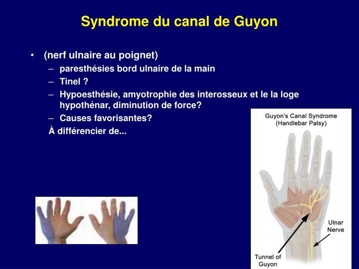 Syndrome du canal de Guyon