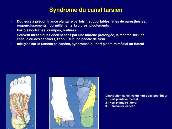 Syndrome du canal tarsien