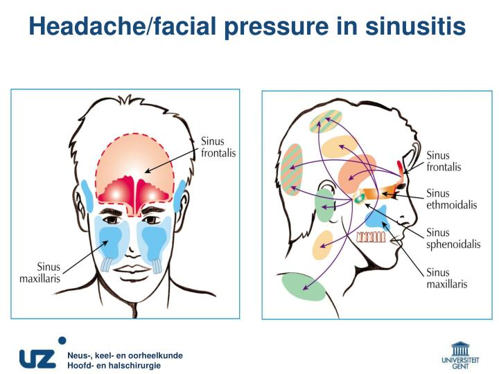 Headache/facial pressure in sinusitis