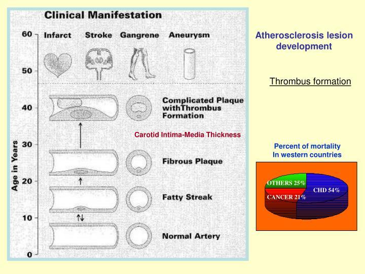 Atherosclerosis lesion