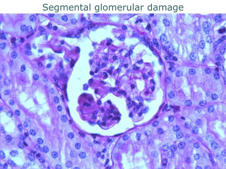 Segmental glomerular damage