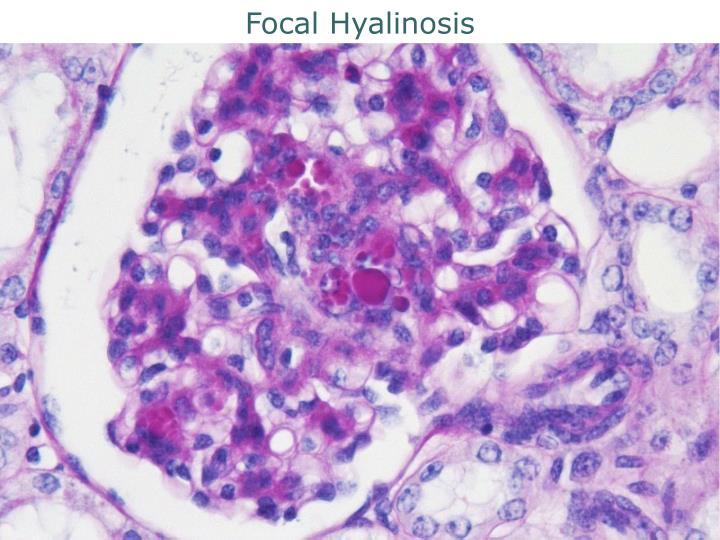 Focal Hyalinosis