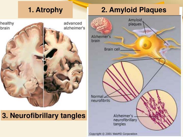 1. Atrophy