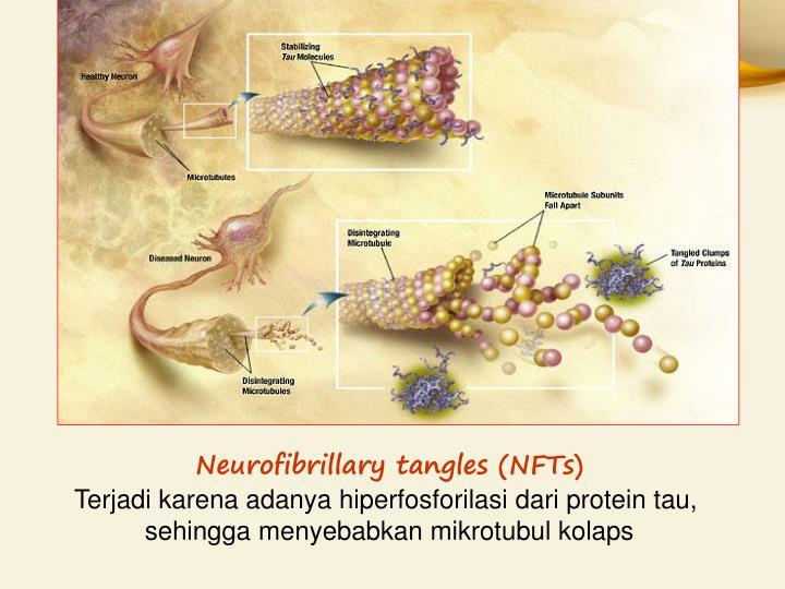 Neurofibrillary tangles (NFTs)