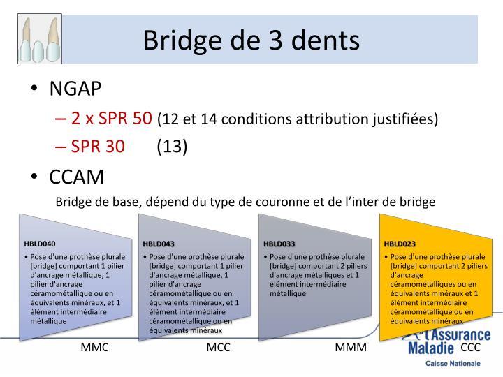 Bridge de 3 dents