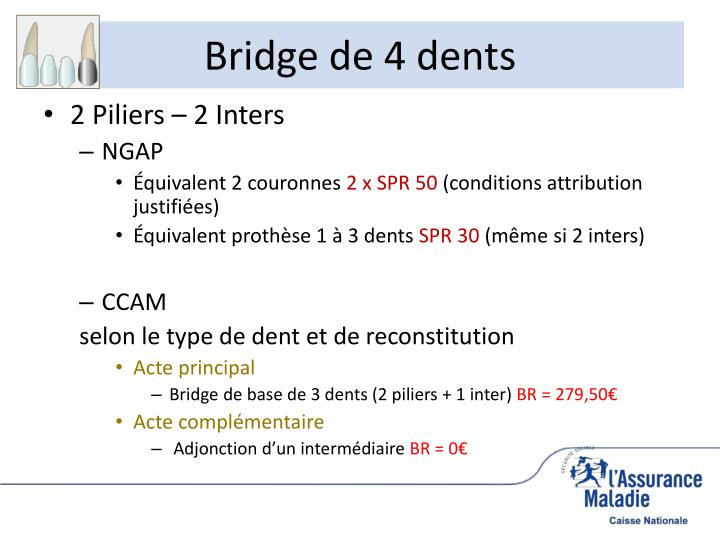 Bridge de 4 dents