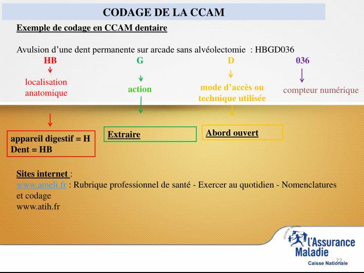Exemple de codage en CCAM dentaire