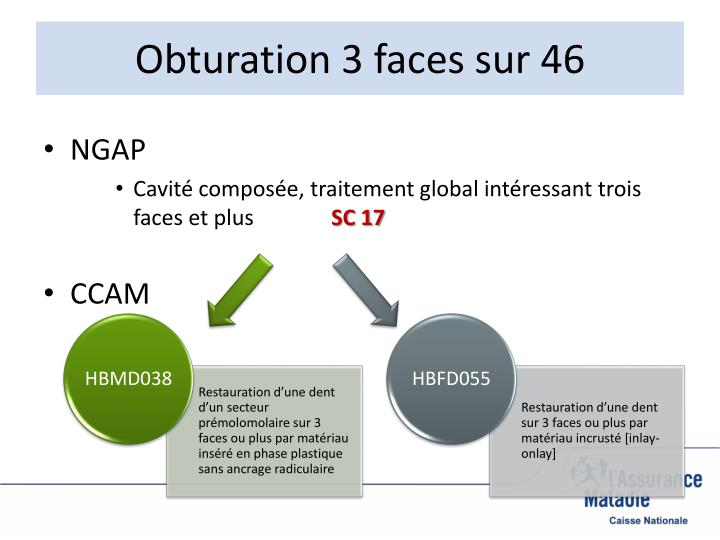 Obturation 3 faces sur 46
