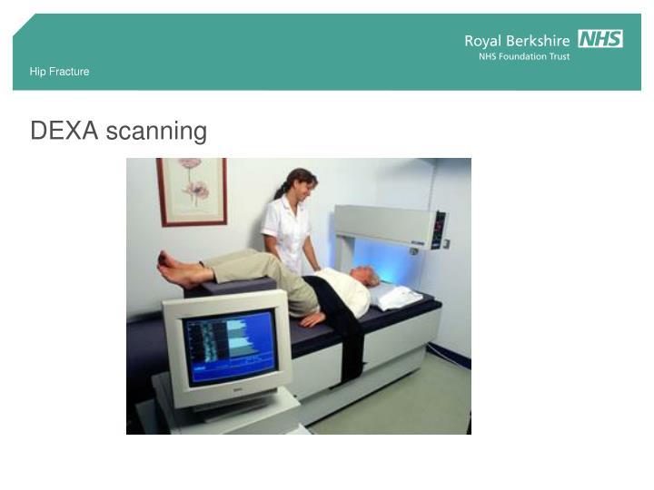 DEXA scanning