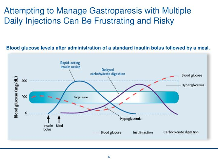 Attempting to Manage Gastroparesis with Multiple Daily Injections Can Be Frustrating and Risky